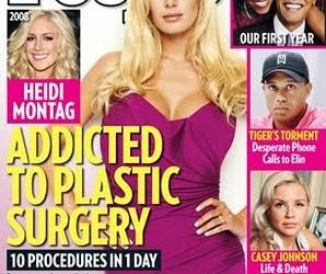 heidi montag ht_plastic_surgery_montag_100113_ssv